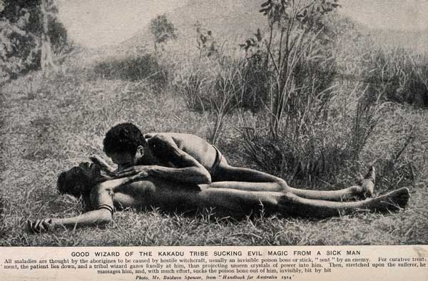 Aboriginal medicine man from the Kakadu tribe with patient